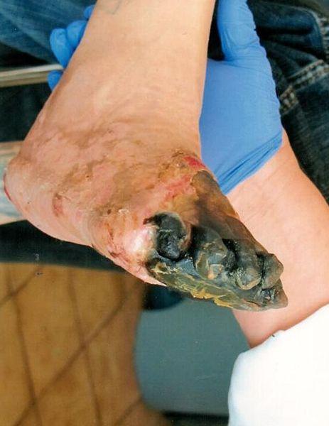 odmrożenia stopy u chorego na cukrzycę